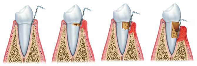 Zahnarzt Heroldsberg Parodontaltherapie